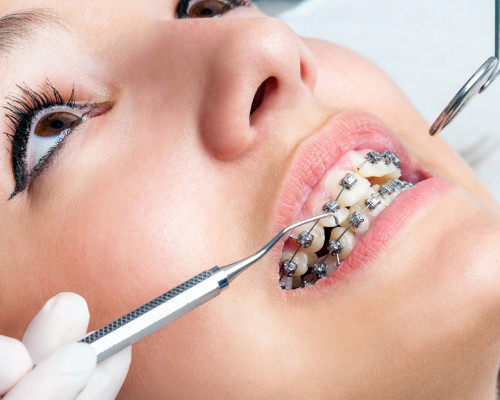 Braces / Orthodontics