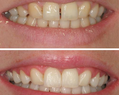 Gap Free or No Gap Dental