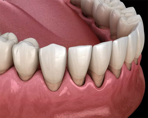 Periodontal and Gum Treatment