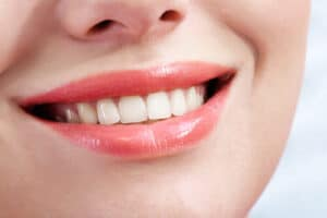 Some good reasons to get Professional Teeth Whitening!