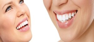 Professional Teeth Whitening to change your life!